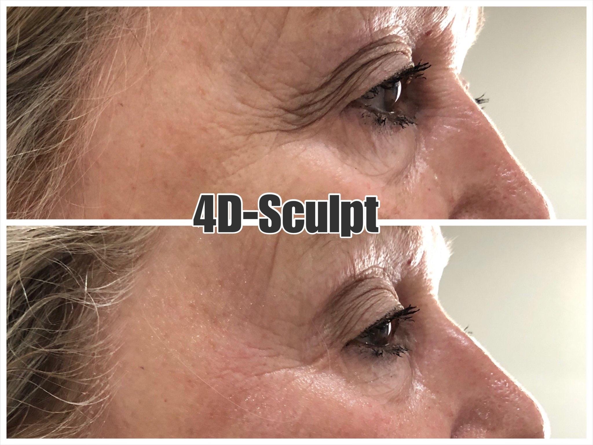 Skin Tightening Around the Eyes Single Treatment Result