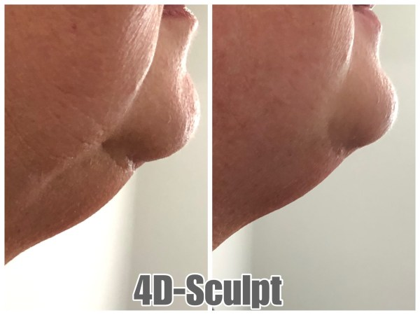 Chin Lift Single Treatment Result 1