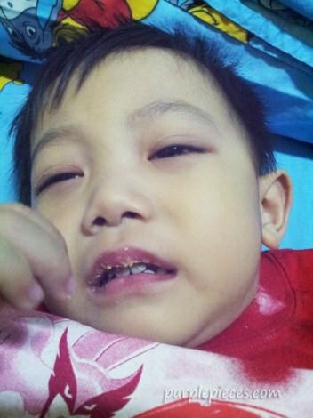 Kawasaki Disease Philippines