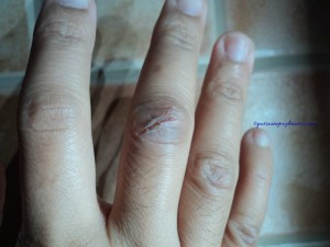 Kulit jari tangan kanan, jari tengah yang paling parah robeknya. Foto 17 Nov 2014
