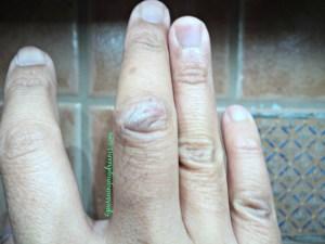 Thanks God akhirnya luka terbuka jari tengahku sembuh. Kulitnya sudah merapat