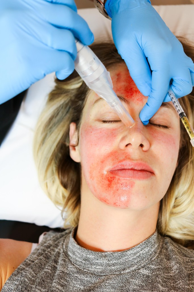 VAMPIRE FACIAL! What is it? What are the benefits? See these before and after photos and learn about this microneedling and PRP beauty buzz treatment! #beauty #microneedling #facial