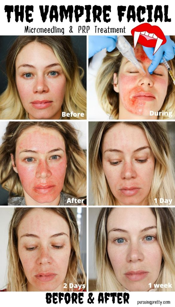 VAMPIRE FACIAL! What is it? What are the benefits? See these Vampire Facial before and after photos and learn about this microneedling and PRP beauty buzz treatment! #beauty #microneedling #facial