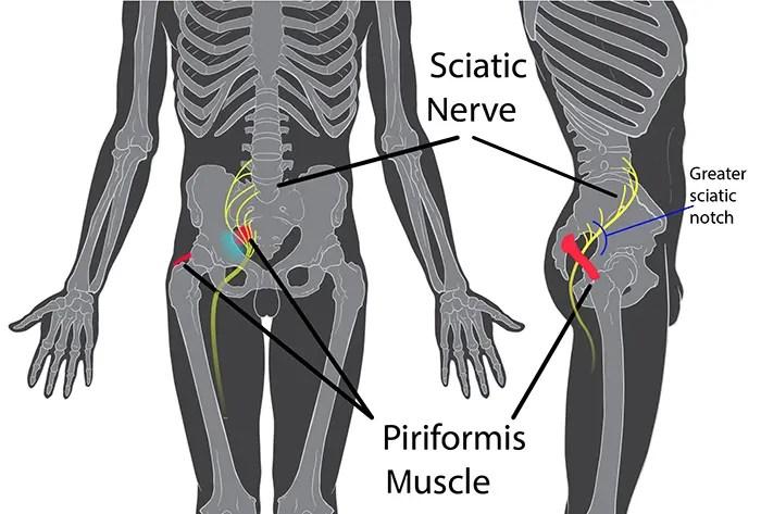 Piriformis Syndrome | El Paso, TX Chiropractor | Dr ...