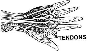 tendinosis