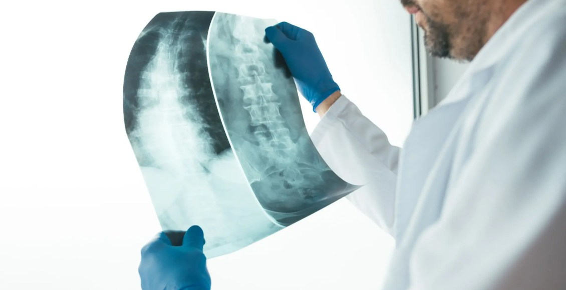 spinal neoplasms diagnostic imaging el paso tx.
