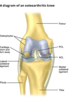 Dr. Sachin Chhabra: Knee Replacement Surgeon Indore, Knee Replacement Doctor Indore