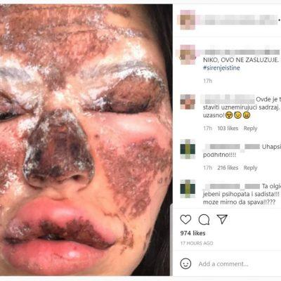 Uznemirujuće fotografije: Beograđanke unakažene u salonu ljepote; Kao žrtve požara smo