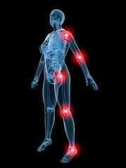 Bone & Joint Pain in MPN Patients Revealed