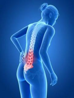 back pain in MPN cancer patient