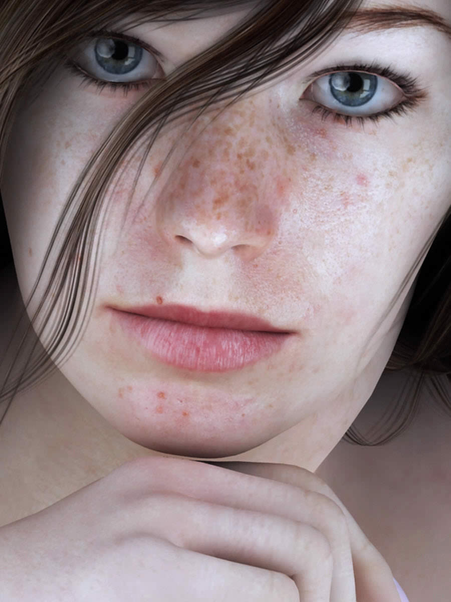 Freckle Test