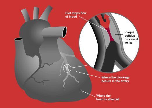 Heart Attack Diagram