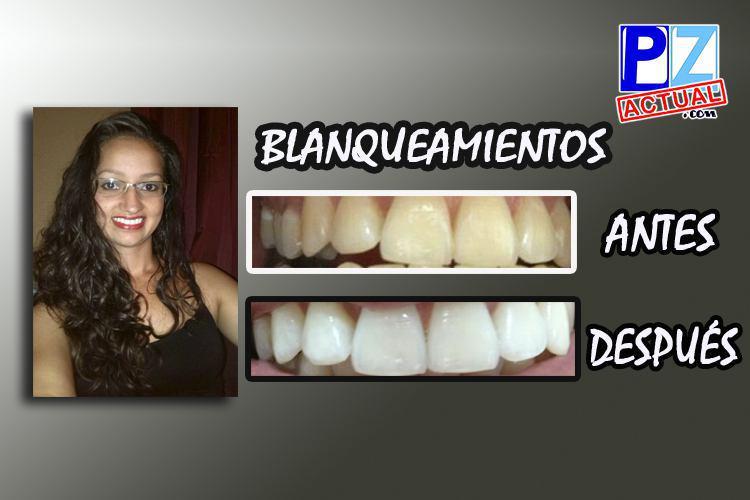 Conozcamos detalles sobre el blanqueamiento dental ¿Qué es? ¿Duele?