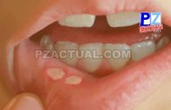 Toda lesión en boca con más de tres meses debe ser valorada por un especialista.