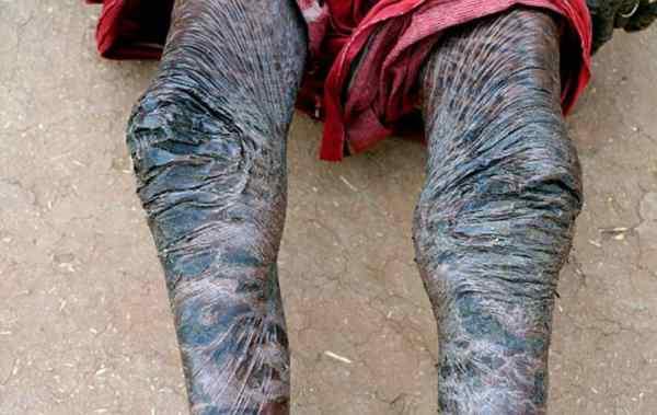 قصة الرجل الأفعى.. ومرض نادر يؤدي إلى تبديل الجلد كل 10 أيام!