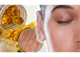 What supplements help dry skin?