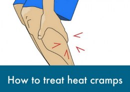 What are the 3 types of heat injuries?