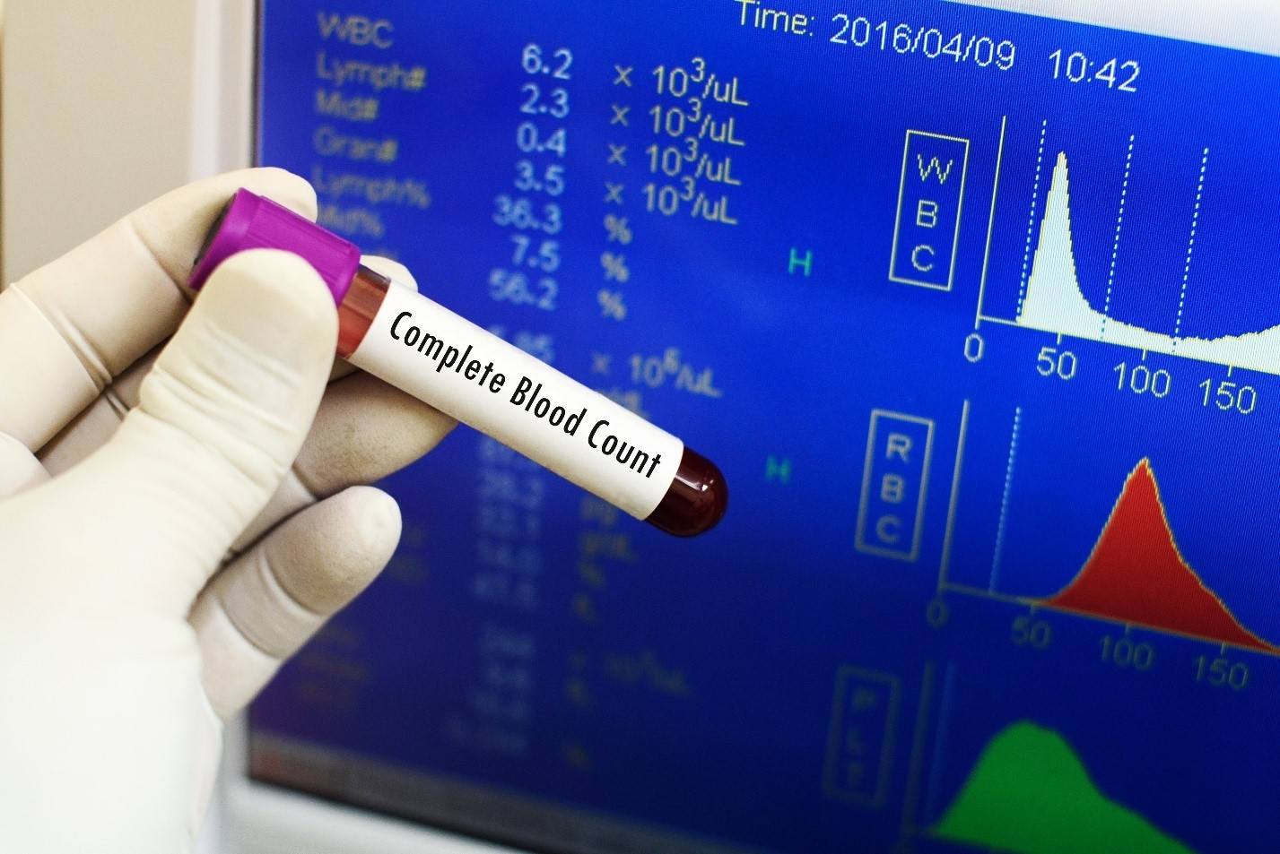 complete-blood-count CBC test ahmedabad