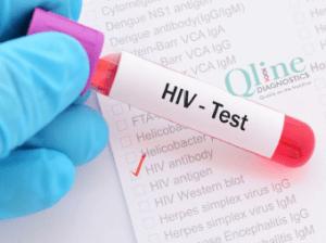 hiv aids testing center ahmedabad gujarat