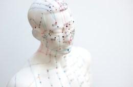 acupuntura medicina china
