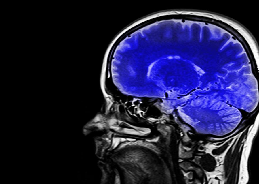 demencia alzheimer cerebro