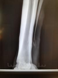 splint