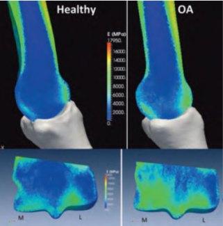 Bone-density.--Healthy-and-Osteoarthritic