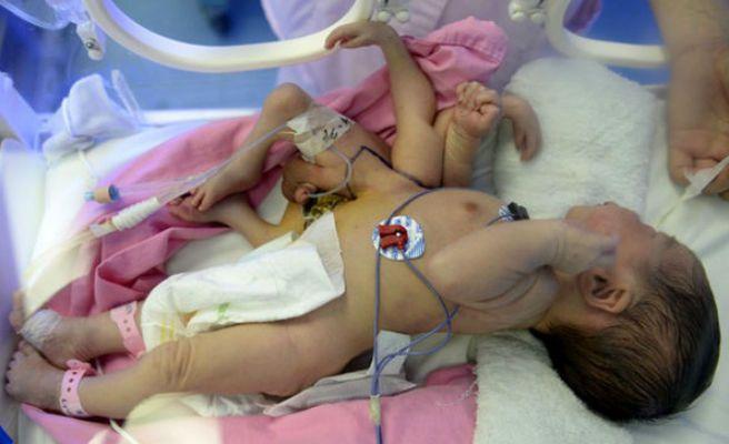 Increíble: Nace un bebé con cuatro manos y cuatro pies