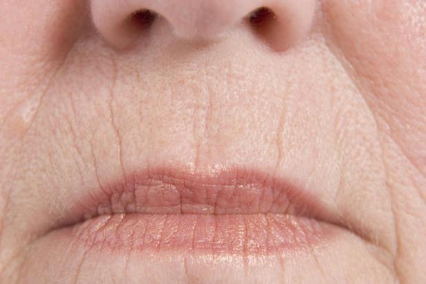 arrugas en la comisura de los labios