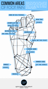 Common areas for foot pain
