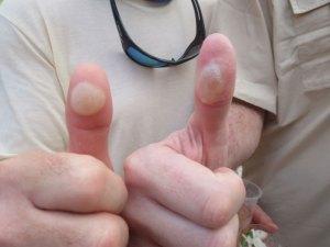 Hard-workin' Thumbs