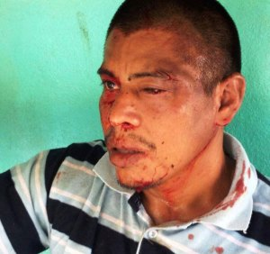 Jehry Rivera, beaten by poachers