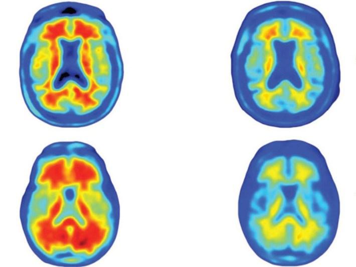 Aducanumab - Reduces plaques in Alzheimer's disease