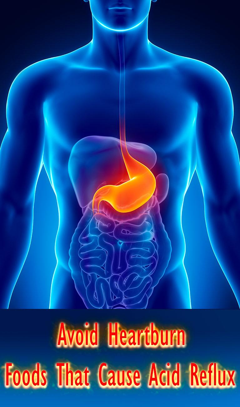 How to Avoid Heartburn - Foods That Cause Acid Reflux - Quiet Corner