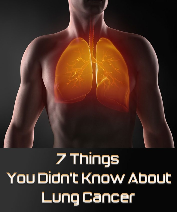 7 Things You Didn't Know About Lung Cancer