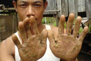 Vietnamita muestra la piel de las manos, afectadas por el arsénico.