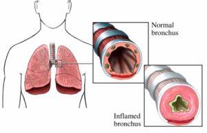 beriliosis pulmonar