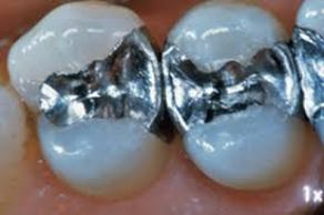 Amalgama dental mercurio
