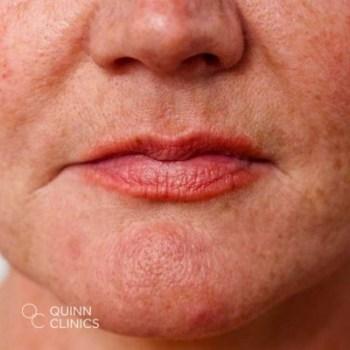 after-dermal-filler-nose-to-mouth-lines