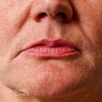 before-dermal-filler-nose-to-mouth-lines
