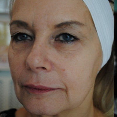 before-juvederm-voluma
