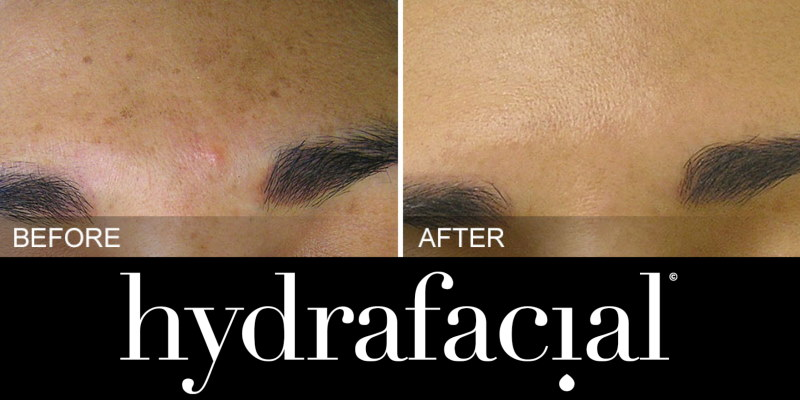 HydraFacial Brown Spots