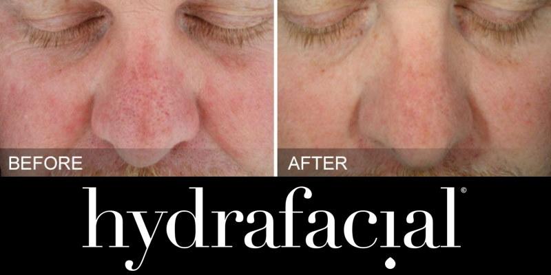 HydraFacial Sun Damage