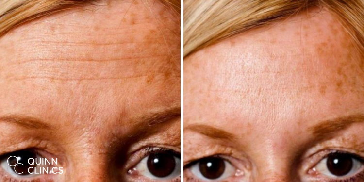 BOTOX results forehead
