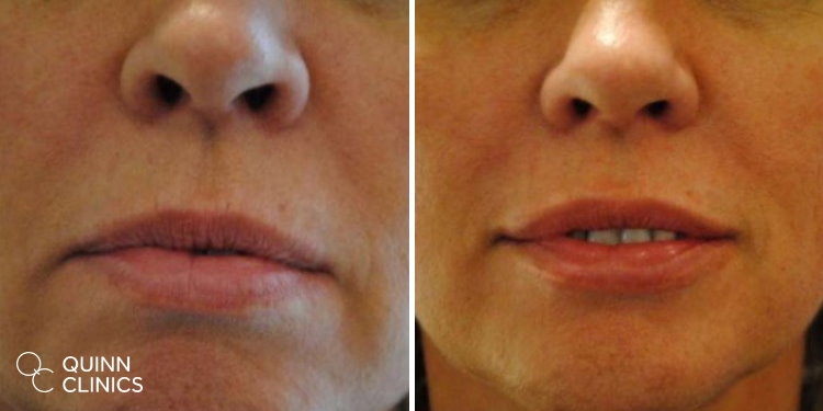 before and after lip enhancement filler
