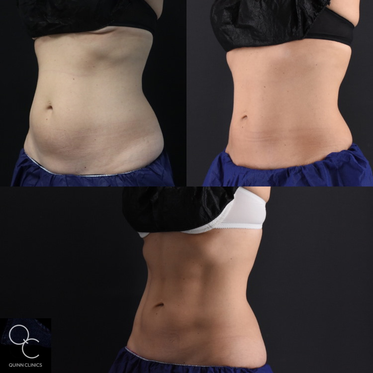 High-Tech Fat Reduction, Non-Invasive | Quinn Clinics