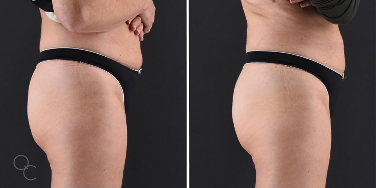 Emsculpt buttocks female 50s 4 Sessions in 2 Weeks