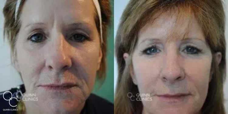 CO2 fractional laser treatment results