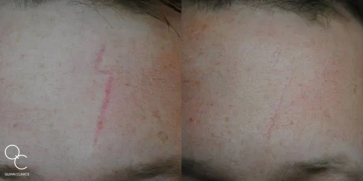 CO2 laser scar treatment results