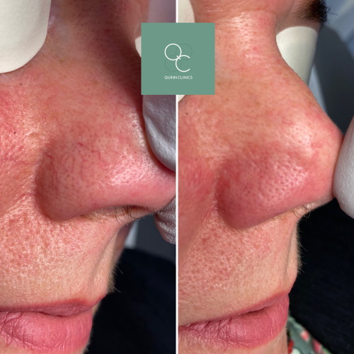 before and after Elvii vascular laser